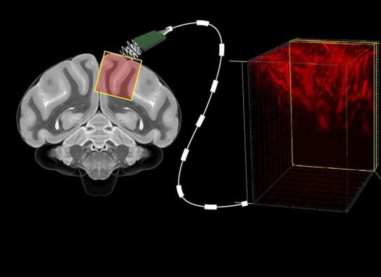 Учёные стали ближе к «чтению мыслей» без хирургического вмешательства в мозг