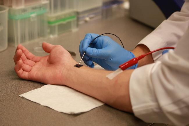Учёные вживили под кожу датчик для определения состава крови