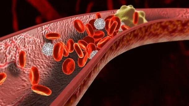 Врачи назвали ранние признаки образования тромбов