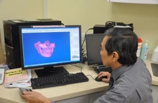Челюстная кость была успешно восстановлена благодаря технологии 3D-печати
