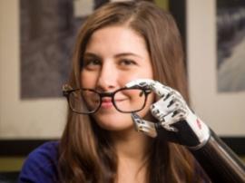 Бионические протезы рук: обзор лучших моделей, доступных в России