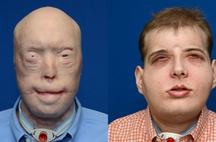 Благодаря технологии 3D-печати американскому пожарному провели самую сложную в мире трансплантацию лица