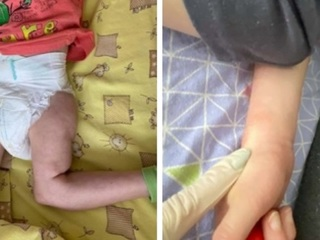 Издевательства над детьми-инвалидами. В самарском пансионате массово увольняется персонал
