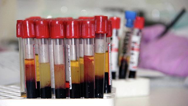 Live Science (США): почему вторая группа крови повышает риск тяжелого течения covid-19?
