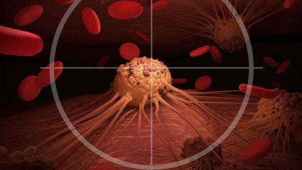 Названы симптомы рака поджелудочной железы