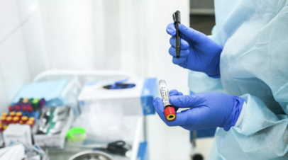 Исследование: объём продаж тестов на антитела к COVID-19 упал на 51% с начала года