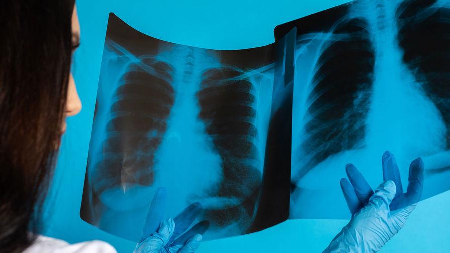 В России создали образец аппарата жидкостной вентиляции легких