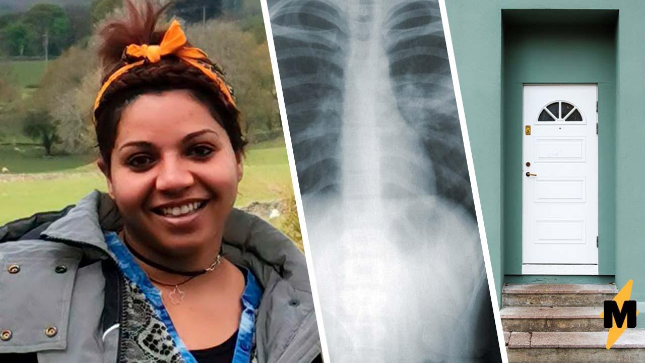 Врачи гадали, почему пациентке тяжело дышать, и ответ был СПОРным. От неё пытался избавиться собственный дом
