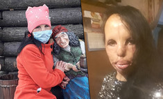«Бабушка показывала меня за деньги»: как живет молодая россиянка с полностью обгоревшим лицом