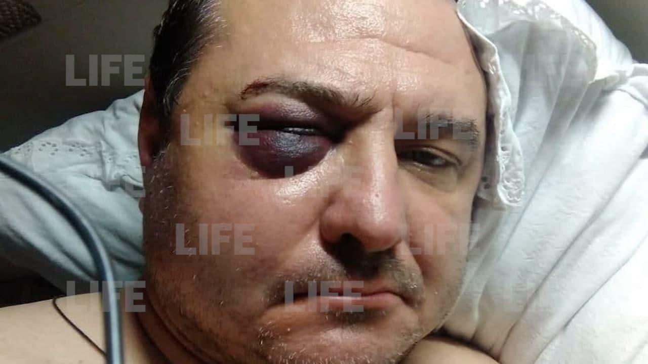 'Потерял сознание, очнулся на асфальте': Экс-солист 'Лесоповала' рассказал Лайфу, как ему сломали челюсть и разбили голову в Сочи