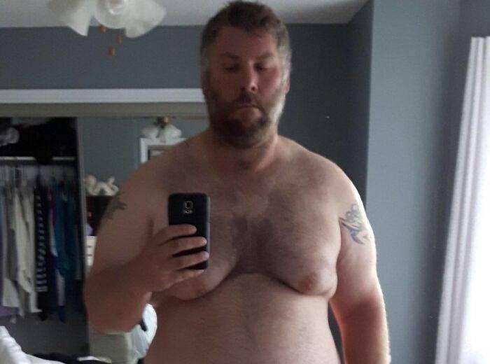 Толстяк весом 240 кг чудом пережил сердечный приступ, и это сподвигло его на невероятные изменения